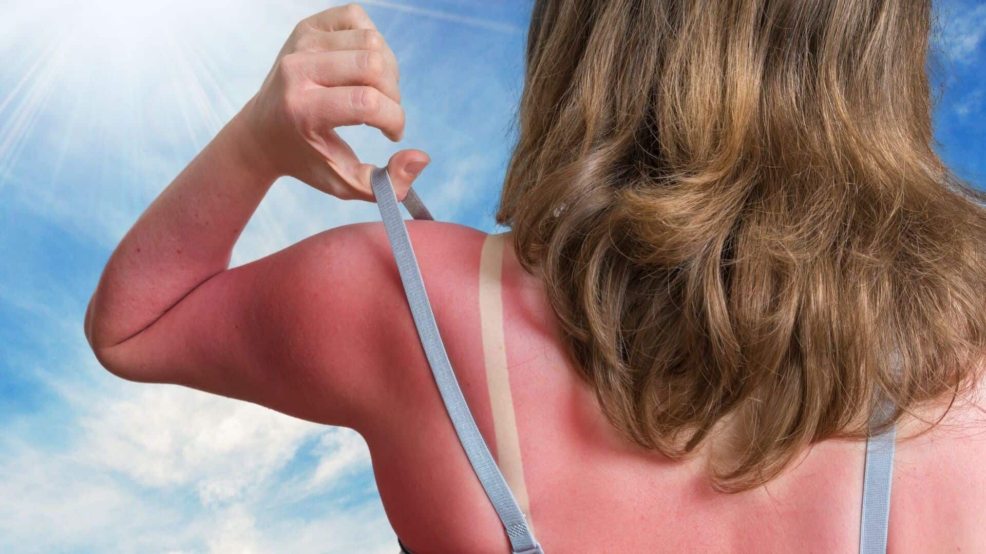 best ways to relieve sunburn